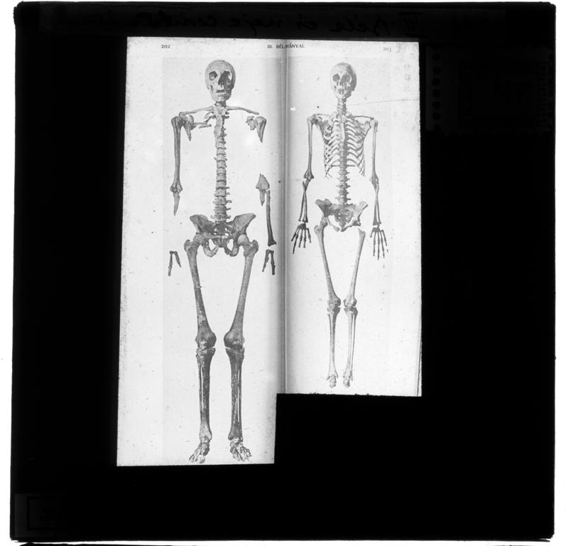 III. Béla és neje csontváza (forrás: MaNDA Adatbázis)